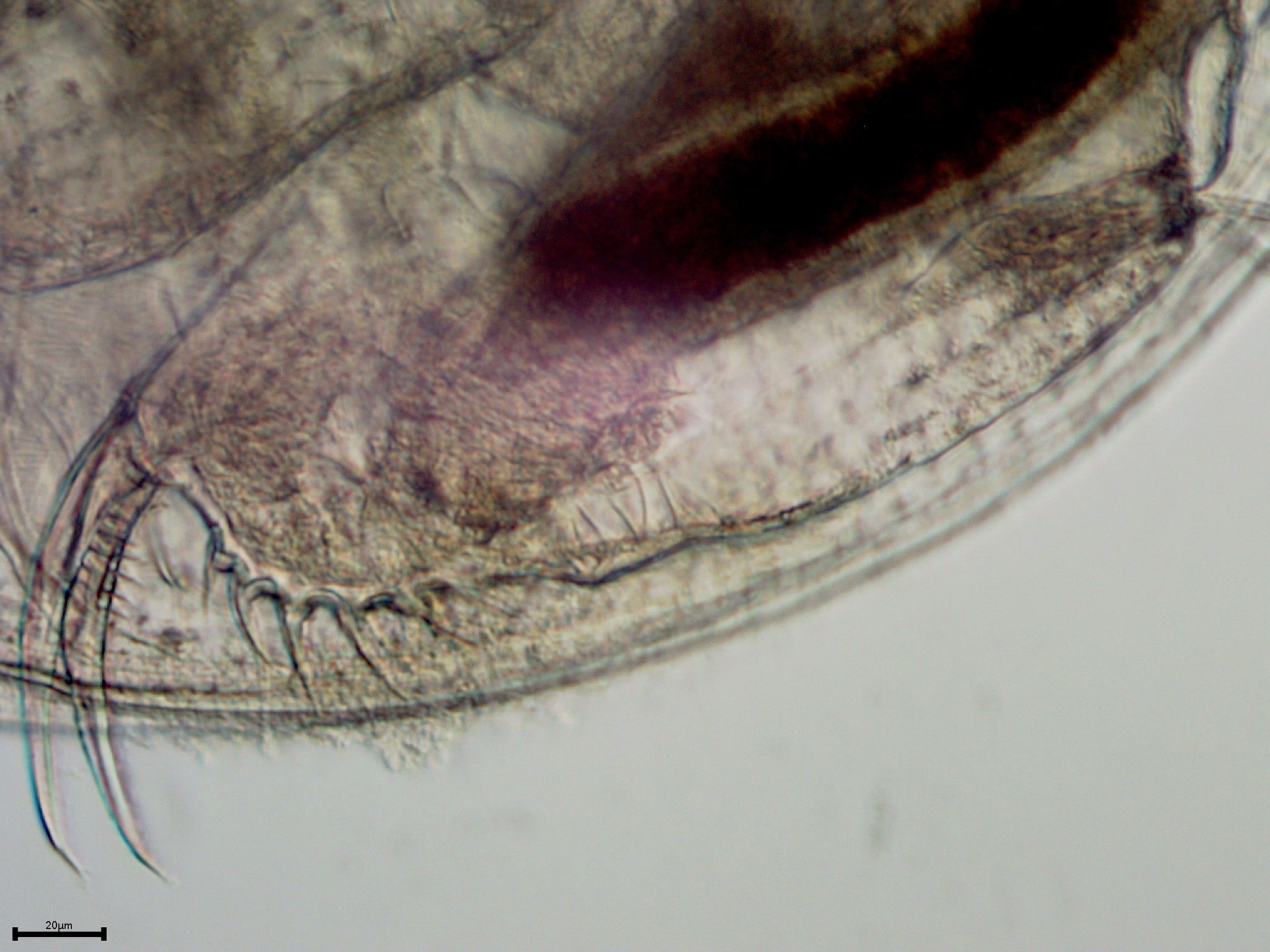 the anatomy of ceriodaphnia The effects of the sumter wastewater treatment plant on the survival and reproduction of ceriodaphnia dubia in chronic toxicity tests introduction to bestiality and zoophilia anonymous proxy.